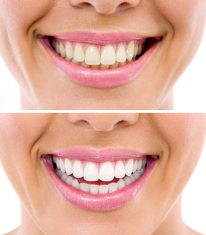 zoom whitening teeth in bradford ontario dentist dental 88