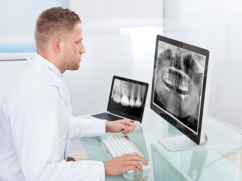 Learn Why Dental Professionals Need Dental X-Rays