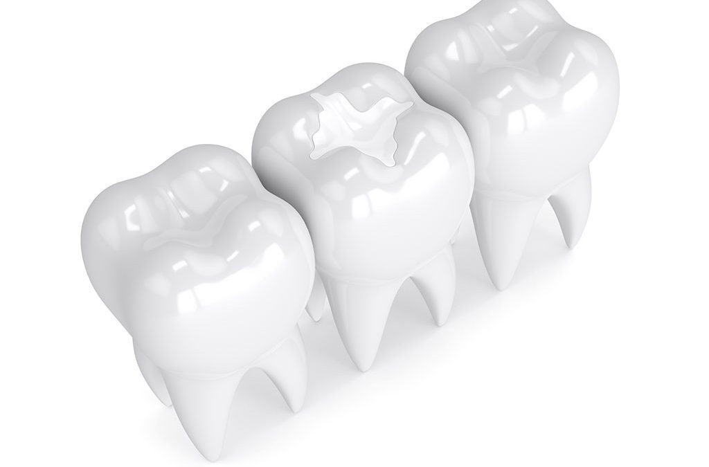 Can You Benefit From Dental Inlays & Onlays?