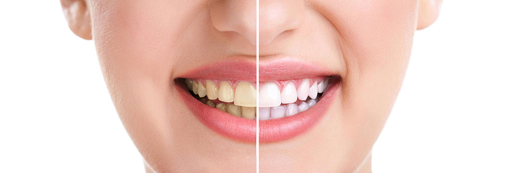 teeth whitening options bradford dentist