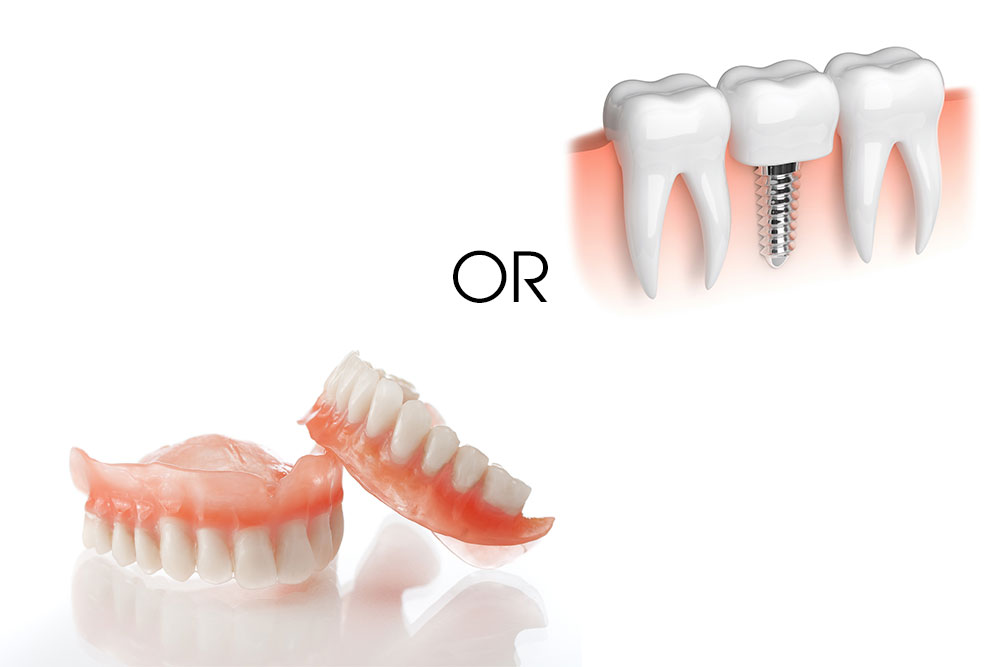 Dentures vs. Implants – How to Choose?